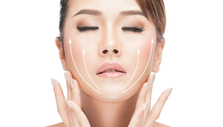 Mini-Thread Lift -The Skin To Love Clinic