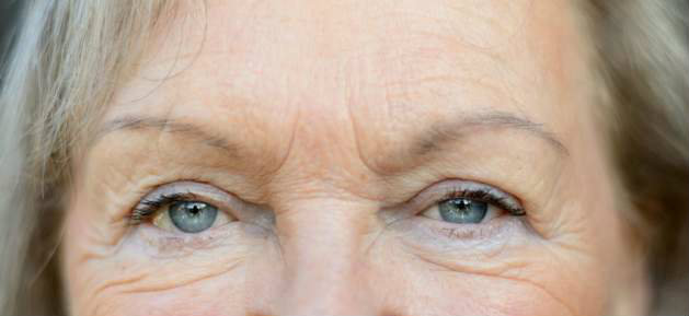 The Ageing Eye -The Skin To Love Clinic